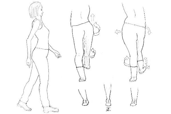 X・O脚は本質から変えるべき