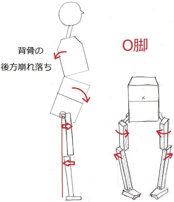 その本質とは⇒⇒⇒「背骨の後方崩れ落ちによる後ろ重心」