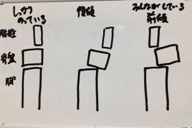 骨盤前傾 正しいイメージ